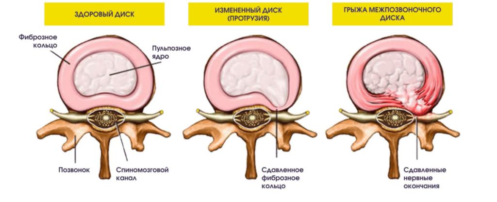 Лечение протрузий николаев