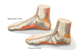 Лечение плоскостопия в Николаеве