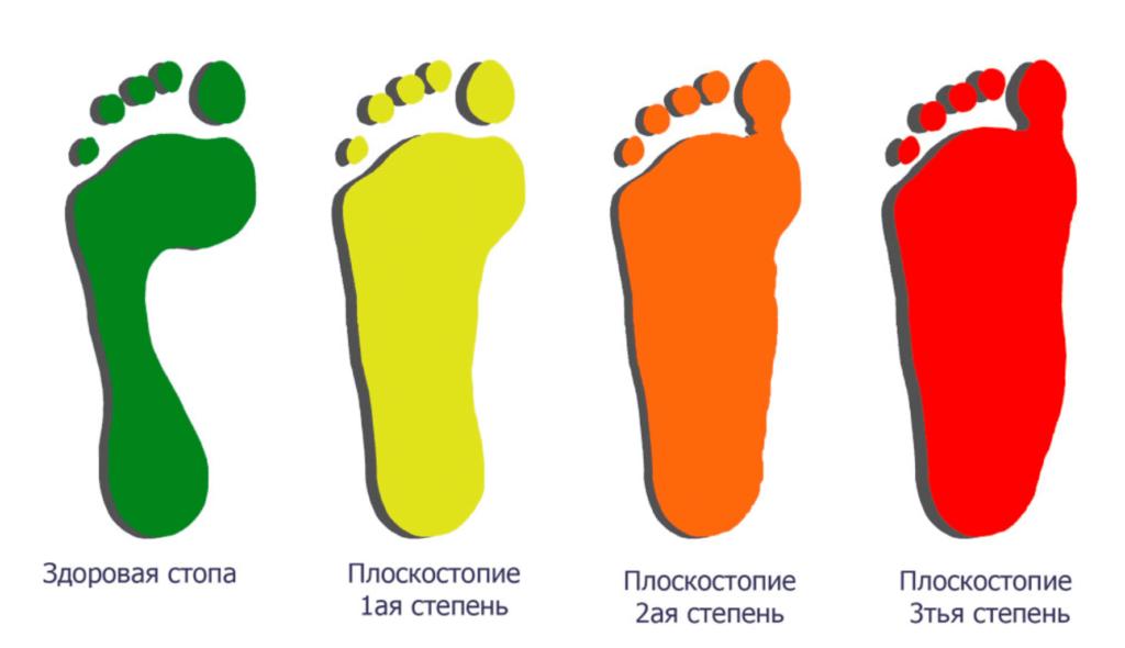 Лечение плоскостопия в Николаеве типы
