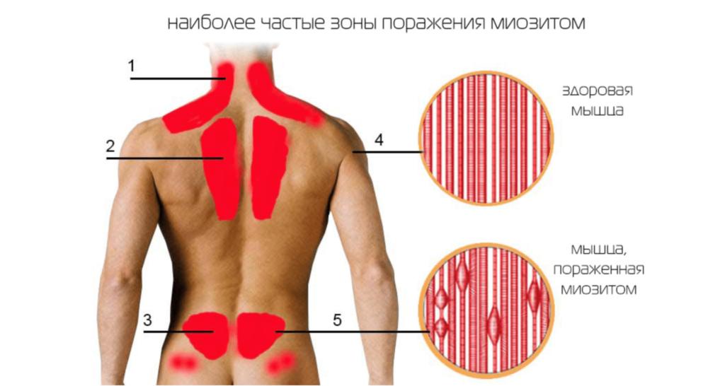 Лечение миозита