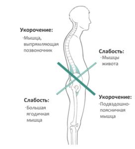 Лечение гипотонуса в Николаеве