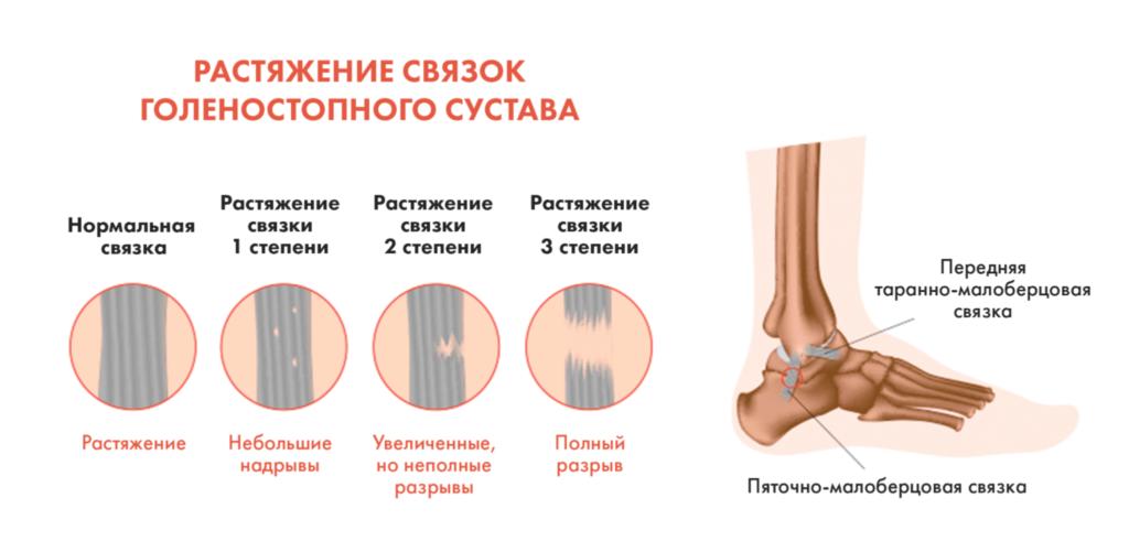 Лечение ушибов в Николаеве