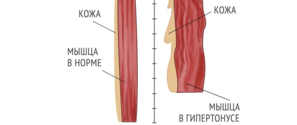 Лечение гипертонуса в Николаеве