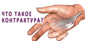 Лечение контрактуры в Николаеве