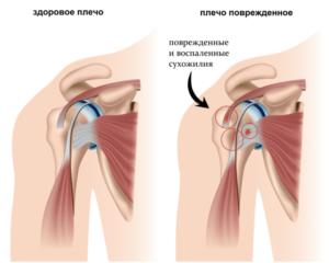 Лечение боли в плече в Николаеве