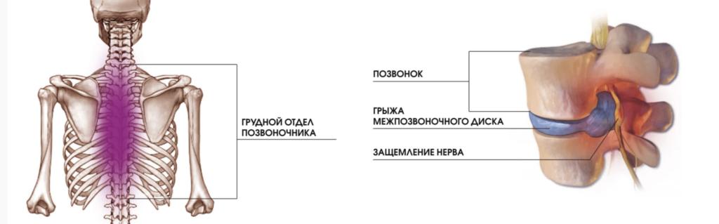 Лечение боли в грудном отделе в Николаeве