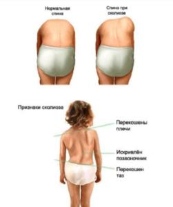 Лечение сколиоза у детей в Николаве